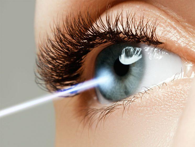 Lasik-Operation an den Augen muss von der PKV erstattet werden