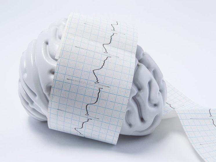 Epileptischer Anfall ist kein Arbeitsunfall