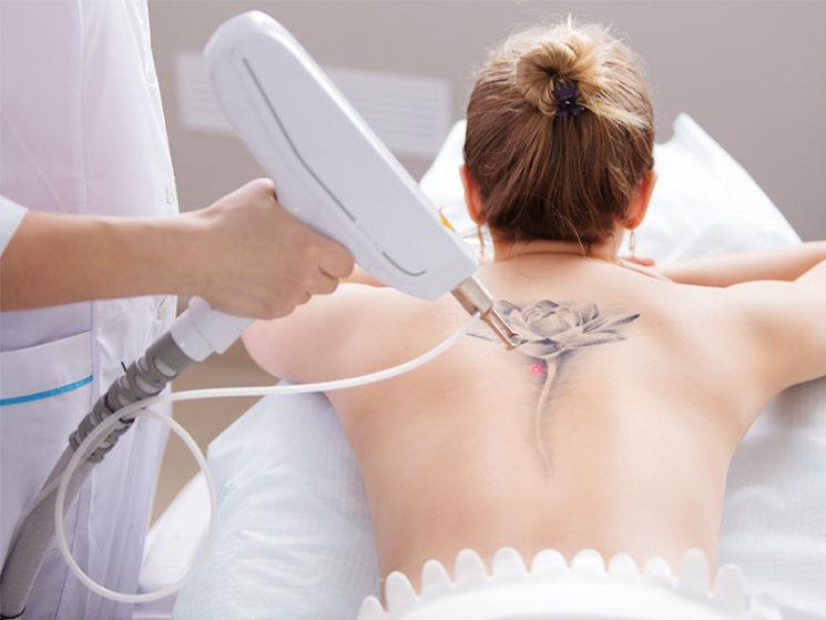 Krankenkasse muss für Kosten einer Tattoo-Entfernung aufkommen