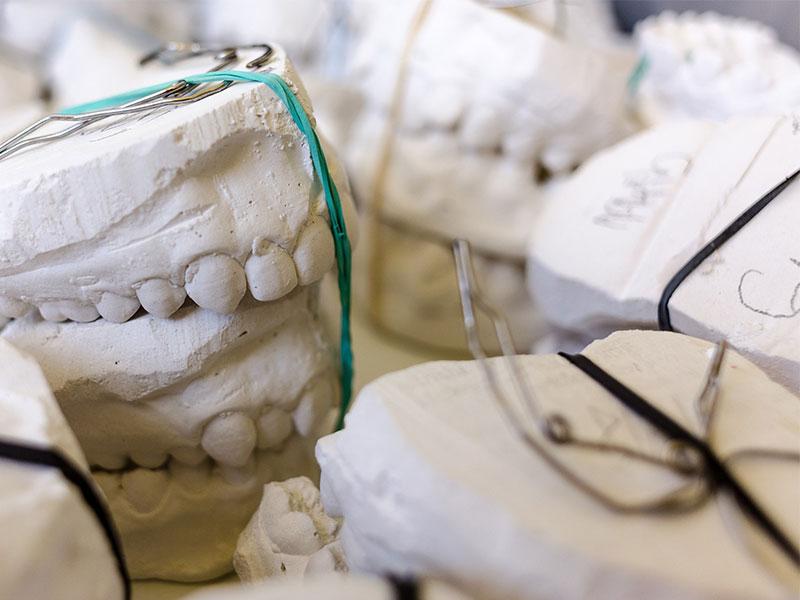 uniVersa mit neuer Beratungshilfe zur Zahnzusatzversicherung