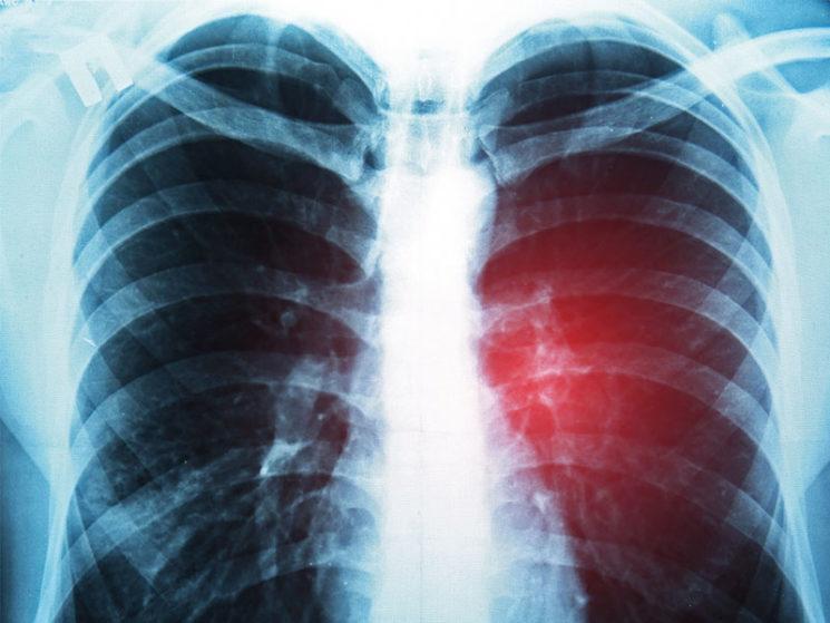 Dread Disease – ein unverzichtbares Versicherungsinstrument