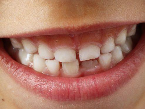 Starker Zuwachs bei der Zahnzusatzversicherung