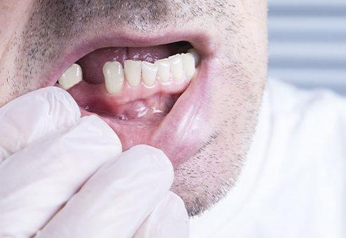 Zahnersatz: Trotz höherem Festzuschuss – die Lücke bleibt