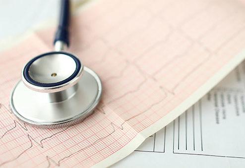 Assekurata: EKG-Check 2020 in der Lebensversicherung